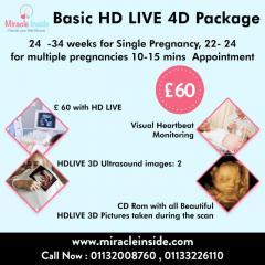 4D HD Live Scan