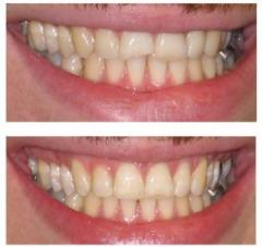 Teeth Whitening Services in the Ealing  Dentael
