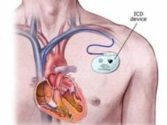 Heart Implants Treatment in India  Healing Touristry