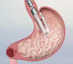 Anti Reflux Procedures Treatment in India