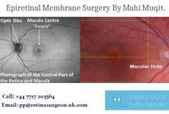 Epiretinal Membrane Surgery By Mahi Muqit.