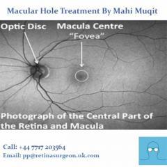 Macular Hole Treatment By Mahi Muqit