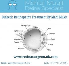 Contact Mahi Muqit For Cataract Surgery In UK