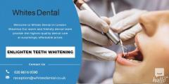 Laser Teeth Whitening Near Me