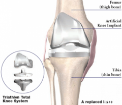 Minimally Invasive Knee Replacement Surgery in India