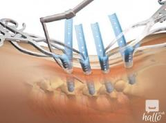 Best Surgery for Minimally Invasive Spine in India