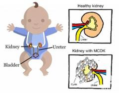 Multicystic Dysplastic Kidney Treatment in India