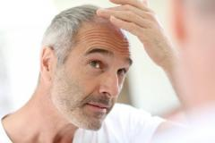 Hair Loss Prevention in London