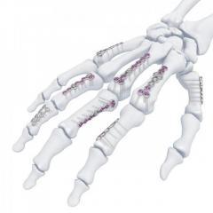 Hand Locking Plate System