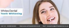 Teeth Whitening Waterloo At Whites Dental in the Waterl