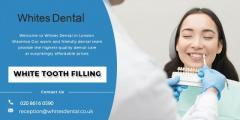 White Tooth Filling Whites Dental in the UK