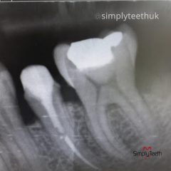 Best Dental Treatment In Essex From Simply Teeth