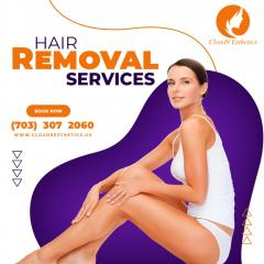 Professional Hair Removal Services In Manassas