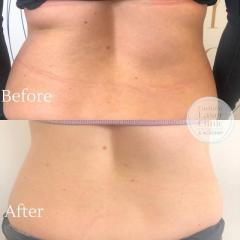 Aqualyx Fat Dissolving Injections Treatment In U
