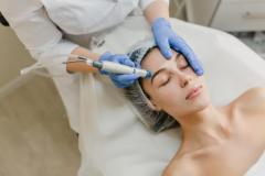 Laser Skin Rejuvenation Treatment At The Carnaby