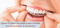 Choose Us When You Need Proper Invisible Braces