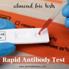 Nucleic Acid Amplification Test