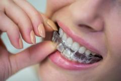 Orthodontics In Muswell Hill