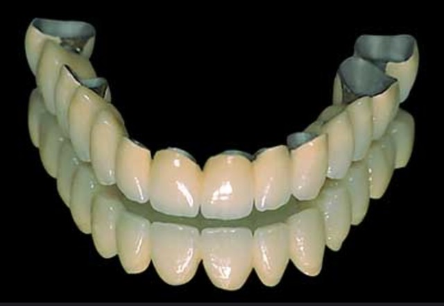 Affordable dental treatments in central London 3 Image