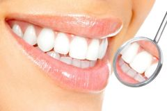 Laser Teeth Whitening- ONLY 59  London, Models neeeded