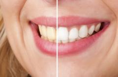 Laser Teeth Whitening- ONLY 69 - Islington - London