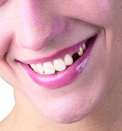 Get your Comfort Smile Back with Hungary Dental Implan