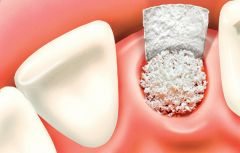 Encourage your surrounding Bone before Dental Implant