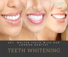 Get  Whiter Teeth with London Dentist