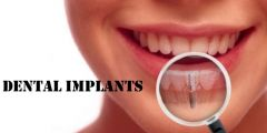 Dental Implants Treatment in Stratford
