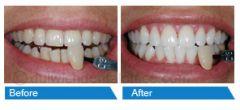 Get Reasonable Teeth Whitening Treatment in East Dulwic