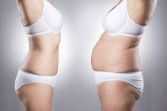 Non-Invasive Way to Reduce Fat with Cryolipolysis
