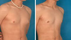 Gyno Treatment - Uk Gynecomastia Clinics