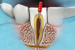 Avail Root Canal Treatment from Endodontic Dentist