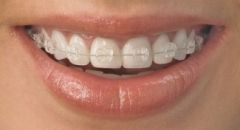 Straighten your Teeth with Invisalign in Hertfordshire