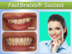 Improve Your Facial Appearance with Cosmetic Dentistry