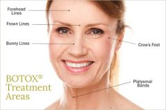 Botox Clinic London - Botox Anti-Wrinkle Clinic, Skin C