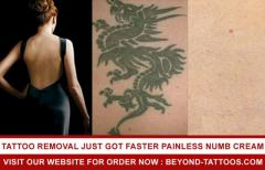 Tattoo Removal Just Got Faster  Painless Numb Cream