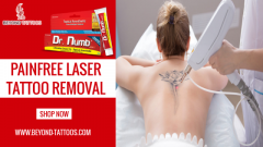 Beyond Tattoos  Painfree Laser Tattoo Removal