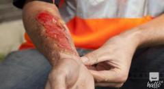 Personal injury- Claim at ShiresLaw