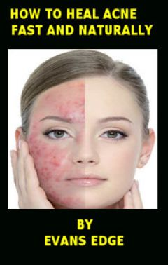 How to Heal Acne Fast and Naturally