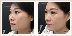 Top Class Anti Ageing Treatments in London