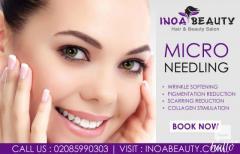Inoa Beauty Salon Provide Microneedling Treatment