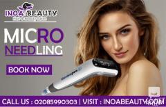Microneedling Treatment At Inoa Beauty Salon