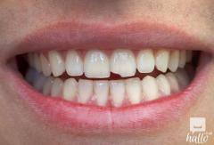 Chipped Tooth and Best Solutions