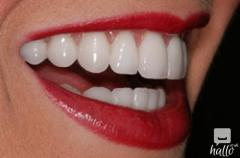 Porcelain Veneers And Its Uses