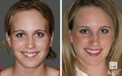 Smile Makeovers