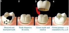 Dental Crown Uses and Procedure