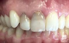 Internal Tooth Bleaching Treatment