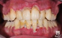 Periodontal Or Gum Disease Treatment