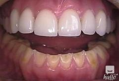 Tooth Erosion And Treatment Options